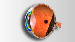 Imagens de Técnicas Complementares de Exame e Patologia Ocular