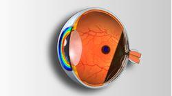 Imagens de Técnicas Complementares de Exame e Patologia Ocular - 2ª edição
