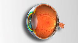 Imagens de Técnicas Complementares de Exame e Patologia Ocular - 4ª edição