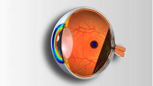 Imagens por categoria Curso de Técnicas Complementares de Exame e Patologia Ocular